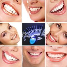 Hot Teeth Whitening Peroxide Dental Bleaching System Oral Gel Kit Tooth Whitener Dental Equipment brand new and high quality White Light Teeth Whitening Tooth Gel Whitener Health Oral Care Toothpaste Kit For Personal Dental Care Healthy Hot Teeth Whitening Remedies, Teeth Whitening System, Natural Teeth Whitening, Whitening Kit, Skin Whitening, Get Whiter Teeth, Teeth Bleaching, Stained Teeth, White Teeth