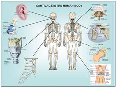 CARTILAGE IN THE HUMAN BODY Cartilage is a type of dense connective tissue. Cartilage is composed of cells called chondrocytes which are dispersed in a firm gel-like ground substance, called the matrix. Cartilage is avascular (contains no blood vessels) and nutrients are diffused through the matrix. Cartilage is found in the joints, the rib cage, the ear, the nose, in the throat and between intervertebral disks. There are three main types of cartilage: hyaline, elastic and fibrocartilage.