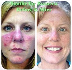 Rosacea can be rough and sometimes hard to cover up with makeup. This picture shows how powerful our products are!   Soothe is a game changer for people suffering from redness. Message me and get 10% off and free shipping!   #rflove