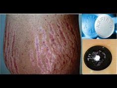 Remove stretch marks very fast using simple home remedy with aspirin. This remedy works fast for getting rid of stretch marks. If your stretch is over 6 mont. Stretch Mark Remedies, Stretch Mark Removal, Stretch Marks On Thighs, Pimples On Forehead, Home Remedies For Pimples, How To Get Rid Of Pimples, Lighten Skin, Acne Treatment, Body Treatments