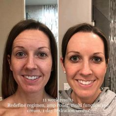 And this is one of the reasons I'm so passionate about Rodan + Fields !!! #lifechangingskincare
