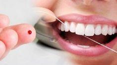 Os implantes dentários são suportes ou estruturas de metal (normalmente de titânio) instalados cirurgicamente no osso maxilar ou mandibular abaixo da gengiva para substituir as raízes dentárias. Uma vez colocados, permitem ao dentista montar dentes substitutos sobre eles, por conta disso,...