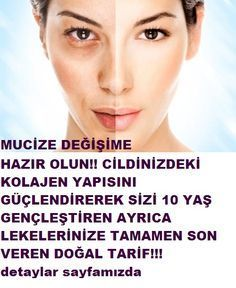 A natural mask that removes blemishes that rejuvenate the skin- Cildi gençleştiren lekeleri yok eden doğal maske A natural mask that removes blemishes that rejuvenate the skin - Beauty Care, Beauty Skin, Health And Beauty, Blemish Remover, Skincare Blog, Natural Health Tips, Hair Serum, Healthy Skin Care, Homemade Skin Care