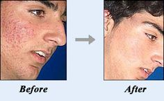 Acne no More... Get Rid Acne Forever and ever.....guarantee work or you money back