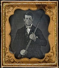 Phineas Gage. Tamping iron went through his skull while working on the railroad.