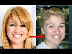 10 Fotos chocantes de famosas sem maquiagem