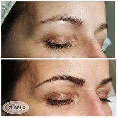 Semi-Permanent Microblading Before & After at Clinetix Rejuvenation