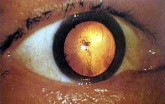Fogonazos: Hiroshima, the pictures they didnt want us to see. This photograph shows an eyeball of an A-bomb victim who got an atomic bomb cataract. There is opacity near the center of the eyeball.