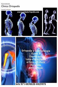 Centro Médico Especializado en Ortopedia y Traumatologia en Bogotá - Colombia www.unidadortopedia.com