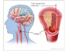 Nuestro cuerpo habla.: Derrame cerebral