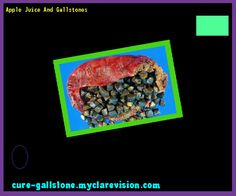 Apple Juice And Gallstones 160329 - Cure Gallstone