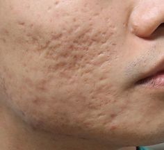 what you should expect from acne scars