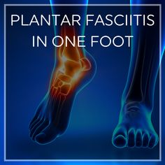 Remedies For Health What to do when you have plantar fasciitis or heel pain in only one foot. - It is not uncommon to experience plantar fasciitis on one side. And what does it mean for treatment? Plantar Fasciitis Exercises, Plantar Fasciitis Treatment, Plantar Fasciitis Shoes, Ankle Pain, Heel Pain, Foot Pain, Gout Remedies, Natural Headache Remedies, Health Remedies