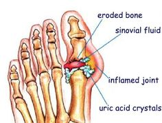 Gout is a very painful form of arthritis that's caused by a buildup of uric acid in the blood. Learn how to relieve gout with these natural remedies. Natural Remedies For Gout, Gout Remedies, Vicks Vaporub, What Is Gout, Gota A Gota, How To Cure Gout, Uric Acid, Natural Treatments, Health Tips