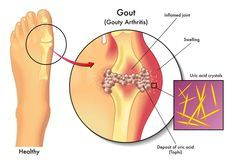 If you frequently experience stiffness and painful inflammation around your joints, it is likely that you are suffering from Gout. This is a type of arthritis that is caused by an accumulation of crystals of uric acid in the joints. Home Remedies For Gout, Gout Remedies, Natural Remedies, Health Remedies, Herbal Remedies, Essential Oils For Gout, What Is Gout, Gout Relief, Pain Relief
