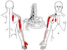 Shoulder, Arm, Hand and Scapula Pain from Scalene Muscle Trigger Points: Referred Pain Patterns