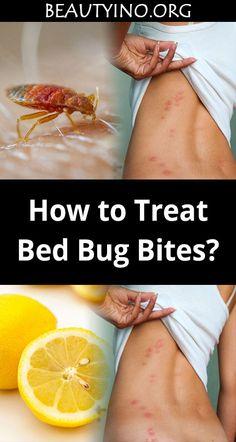 How to Treat Bed Bug Bites? – Beauty ino