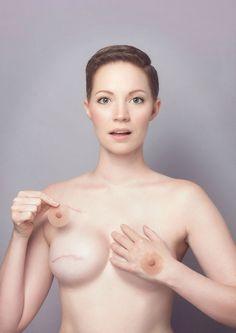 mastectomie-aniela-mcguinness-06