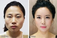 Things That You Need To Know When It Comes To Plastic Surgery. Reconstructive surgery is something that has been performed throughout the ages, but it has grown in popularity in recent times. Plastic Surgery Procedures, Cosmetic Procedures, Korean Plastic Surgery, Plastic Surgery Before After, Celebs Without Makeup, Makeup Before And After, Surgery Center, Medical Problems, Rhinoplasty