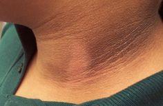 Como Eliminar Manchas Negras En El Cuello http://top10remedioscaseros.com/manchas-negras-en-el-cuello/