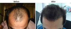 Profile hair transplant center is one of the best and prominent hair transplant center in India. We provide various hair transplant treatment to the patient at very reasonable rates. You can get any hair treatment as per interest. If anyone interested then you can visit our website or contact us at anytime.