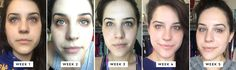 This Crazy 14-Step Korean Skincare Routine Completely Changed My Skin via Brit + Co