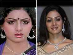 7 Perfect Bollywood Celebrity Nose Jobs Which Changed Fates