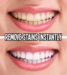 How To Remove Stains On Teeth Instantly