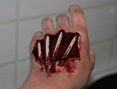Exposed bones in hand