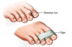 Hammer Toe Causes, Symptoms and Treatment - Hammer Toe Taping Hammer Toe Correction, Arthritis, Hammer Toe Surgery, Toe Exercises, Get Rid Of Bunions, Bunion Pads, Tight Hip Flexors, Foot Pain, Feet Care