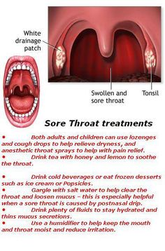 Sore throat treatments