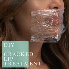 How to Treat Dry, Cracked Lips - finally!