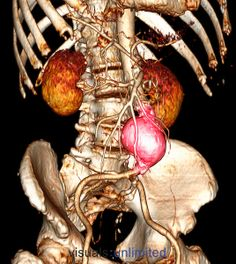 CT scan of an abdominal aortic aneurysm (ballooning) which developed between the renal arteries and the common iliac arteries. Abdominal Aortic Aneurysm, Radiologic Technology, Operating Room Nurse, Medical Imaging, Medical Art, Surgical Tech, Internal Medicine, Medical Information, Body Systems