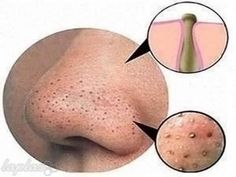 Comedones, also known as whiteheads and blackheads, are a type of acne which is less severe than pimples and cysts, however it should not be left untreated. They can appear on the dace, shoulders and back and are a result of increased sebum that clogs the pores. Blackheads are actually open comedones that are filled with dead skin cells and debris which turn black when exposed to oxygen. Whiteheads have a microscopic opening on the skin surface making air unable to reach them so they remain…