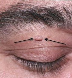 How to Safely Remove a Skin Tag | Tips Aggregator