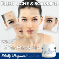 Acne Eliminate Your Acne - The 2 Most Important Steps for Eliminating Acne Scars Free Presentation Reveals 1 Unusual Tip to Eliminate Your Acne Forever and Gain Beautiful Clear Skin In Days - Guaranteed! Acne Skin, Acne Scars, Sensitive Skin, Remedios Congestion Nasal, Natural Acne Treatment, Scar Treatment, Acne Treatments, Pimples Under The Skin