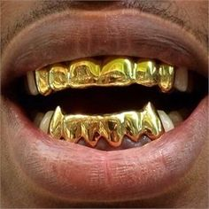 Teeth grillz, also known as bling bling grillz and dental grills, are removable jewelry that fits onto the front teeth and is worn by hip hop artists. Diamond Grillz, Diamond Teeth, Custom Grillz, Grills Teeth, Gold Grill, Gold Teeth, Luxury Jewelry, Body Jewelry, Cool Style