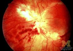 cmv retinitis cotton wool spots- Google Search