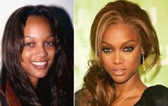 """Model Tyra Banks had a nose job to """"perfect"""" her look #plasticsurgery #celebrity"""