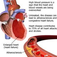Natural Treatments For High Blood Pressure