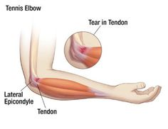 Tennis Elbow http://www.performchiro.com/your-symptoms/#tab-1-8-sciatica
