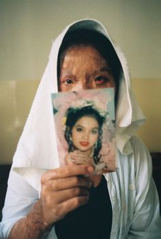"Acid attacks are most common in Cambodia, Afghanistan, India, Bangladesh, Pakistan, and nearby countries. Globally, at least 1500 people in 20 countries are attacked in this way yearly, 80% are female and somewhere between 40% and 70% under 18 years of age. According to NYTimes reporter Nicholas Kristof, acid attacks are at an all time high in Pakistan and increasing every year. The Pakistani attacks he describes are typically the work of husbands against their wives who have ""dishonored them"""