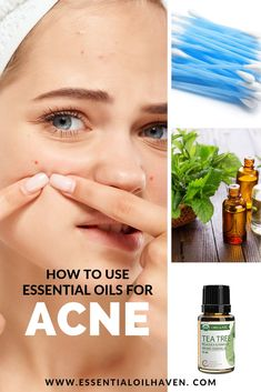 How to use Essential Oils for Acne. Have you tried several acne and spot removers including soaps and facial cleansers but to no avail? Why not switch to using essential oils for acne and see the wonders of nature's own medicine on your skin. Essential Oils Pimples, Essential Oils For Skin, Essential Oil Uses, Acne Scars, Acne Skin, Oily Skin, Skin Bumps, Skin Care Masks, Acne Scar Removal
