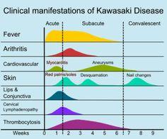 Kawasaki disease - Wikipedia, the free encyclopedia Kawasaki Disease, Nurse Jackie, Historia Natural, Pa School, Heart Muscle, Human Anatomy And Physiology, Pediatric Nursing, National Health, Autoimmune Disease