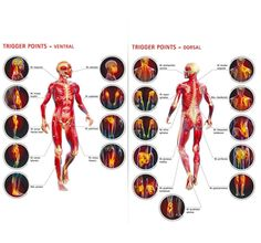 Myofascial Pain Syndrome (MPS) and Fibromyalgia