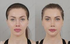 pixee fox before Pixee Fox, Liposuction, Plastic Surgery, Image