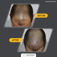 Is summer taking a toll on your hair? Alvi Armani -India has got you covered with an expert for your Schedule your free consultation, Call us at : . Hair Transplant In India, Fue Hair Transplant, Natural Hair Care, Natural Hair Styles, Hair Restoration, Hair Goals, Clinic, Schedule, Take That