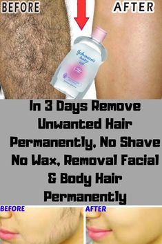 In 3 Days Remove Unwanted Hair Permanently, No Shave No Wax, Removal Facial & Body Hair Permanently - Healthy Solutions 24