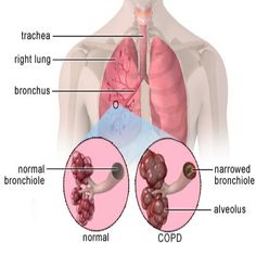 copd | chronic obstructive pulmonary disease generally represents emphysema ...