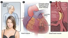 How Stress Triggers Heart Attacks and What You Can Do About It